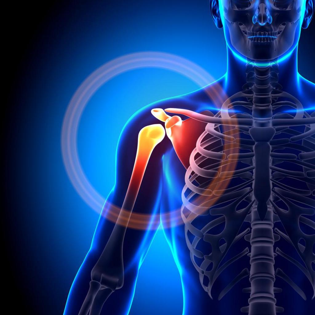 Derecha dolor hombro clavicula